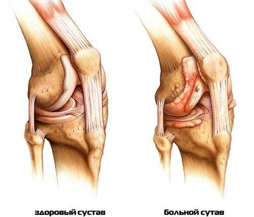 Боли в суставах у пожилой женщины лечение
