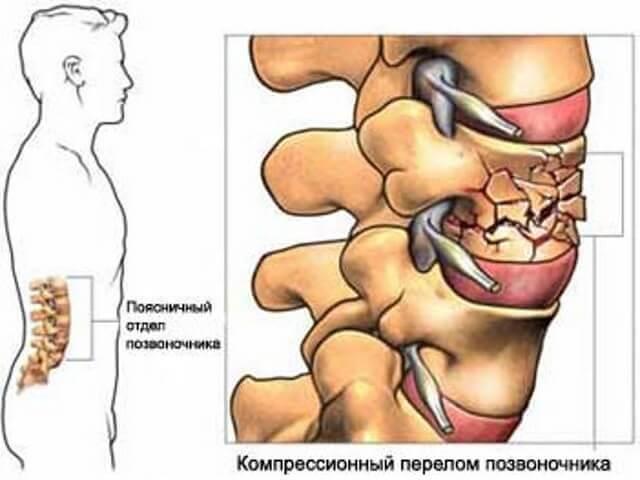 Лечение компрессионного перелома позвоночника у пожилого человека