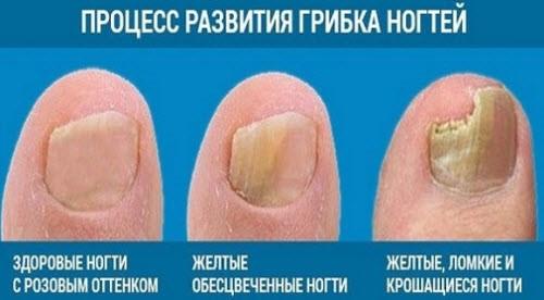 Грибок ногтей подробнее на сайте пансионатов {amp}quot;Дача{amp}quot;
