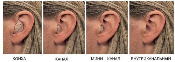 Виды внутриушных слуховых аппаратов